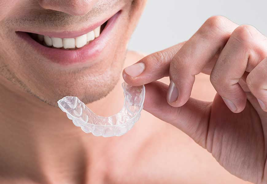 Benefits Invisalign Offer