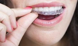 Why Invisalign is Right for You!
