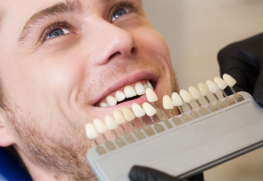 Veneers vs. Lumineers Explained by a Local Dentist