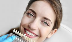 Fixing Teeth Alignment with Dental Bridges